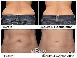 Hot Cold Fat Cell Melting Dissolver Tone lipo laser waist leg cryo Slimming Belt